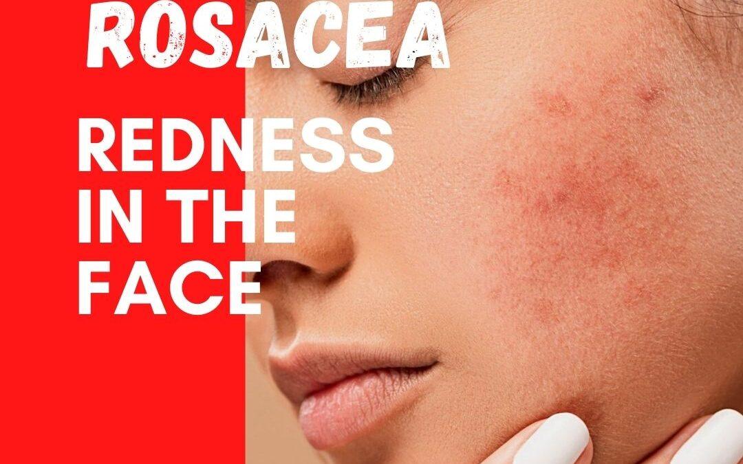 Rosacea – Natural Skincare: HealingMatters 77