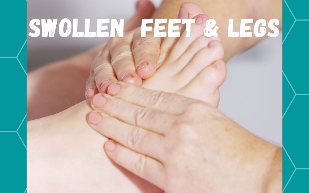 Natural Remedies For Foot & Leg Swelling